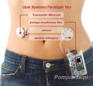 opis_systemu_Medtronic_Paradigm_Veo
